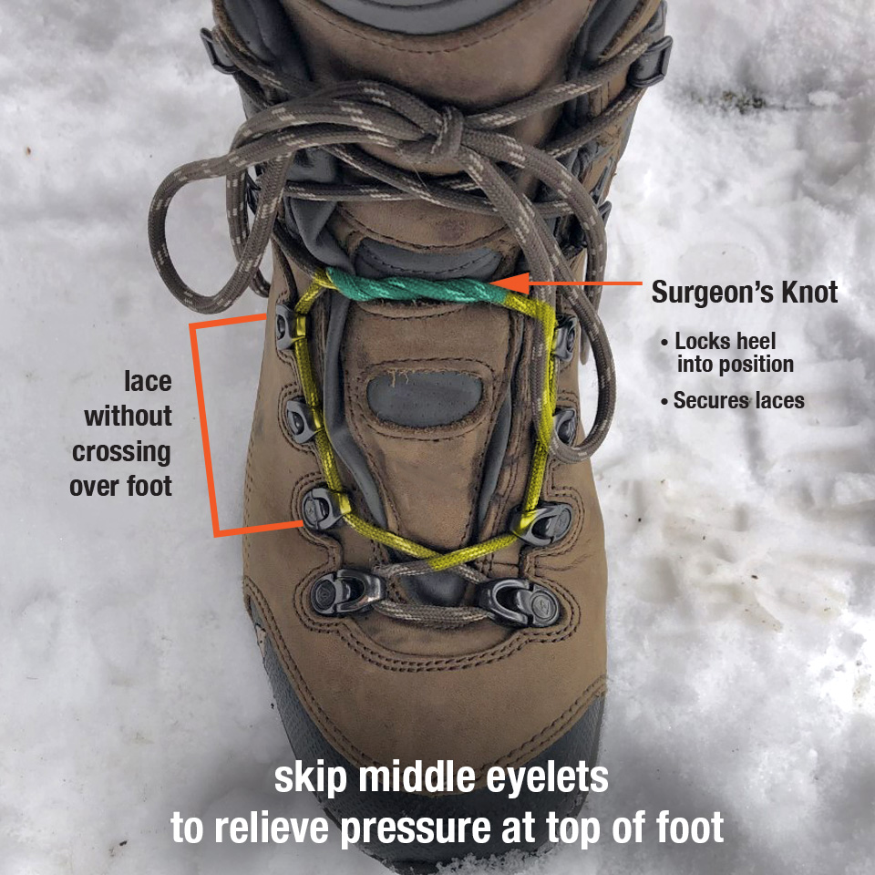 how to lace hiking boots to relieve foot pressure pain
